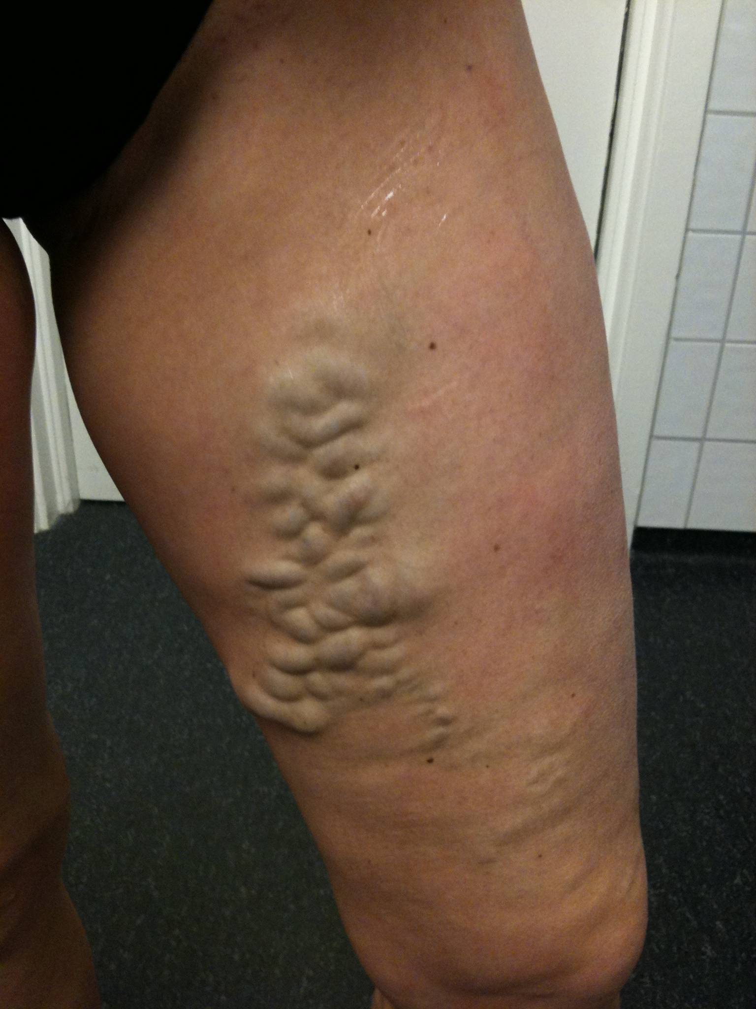 how to get rid of varicose veins after pregnancy